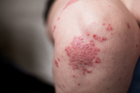 A Caucasian woman with psoriasis, eczema, atopic dermatitis on the skin of leg. Skin rashes from contact allergic reaction