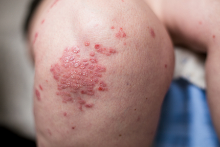 One Caucasian woman with psoriasis, eczema, atopic dermatitis on the skin of leg. Skin rashes from contact allergic reaction