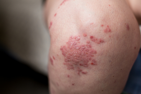 One Caucasian woman with psoriasis, atopic dermatitis on the skin of leg. Skin rashes from contact allergic reaction Stock Photo