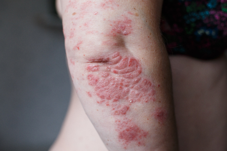 Psoriasis skin. Psoriasis is an autoimmune disease that affects the skin cause skin inflammation red and scaly. Eczema skin