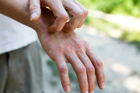 The problem with many people - eczema on hand Stock Photo