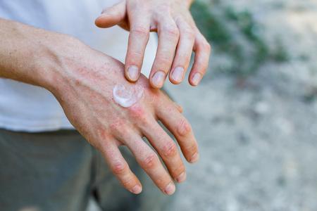 Zalf bij de hand. Het aanbrengen van de zalf bij de behandeling en hydratatie van de huid. Psoriasis huid. Horizontale foto