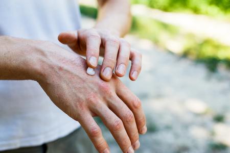 Auftragen einer erweichenden Creme auf trockene, schuppige Haut wie bei der Behandlung von Psoriasis, Ekzemen und anderen Erkrankungen der trockenen Haut