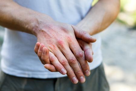 Close-up van dermatitis op de huid, zieke allergische uitslag dermatitis eczeem huid van de patiënt, atopische dermatitis symptoom huid detail textuur, schimmel van de huid, het concept dermatologie, behandeling schimmel en schimmel Stockfoto