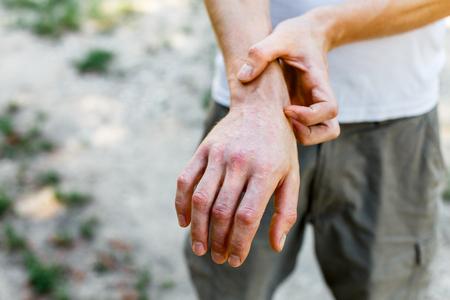 Nahaufnahme Dermatitis auf der Haut, kranker allergischer Hautausschlag Dermatitis Ekzem Haut des Patienten, atopische Dermatitis Symptom Haut Detail Textur, Pilz der Haut, Das Konzept Dermatologie, Behandlung Pilz und Pilz