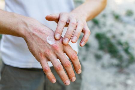 het aanbrengen van een verzachtend middel op een droge, schilferende huid zoals bij de behandeling van psoriasis, eczeem en andere droge huidaandoeningen