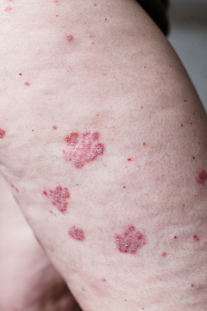 Close up ill allergic rash, eczema skin of patient , atopic dermatitis symptom skin detail texture , Fungus of skin ,The concept dermatology, treatment. Red spots on psoriasis skin. Feet of a woman Stock Photo