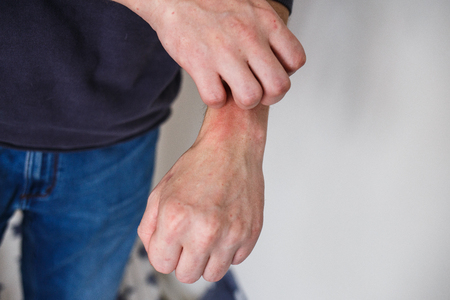 Closeup men itching and scratching by hand. Psoriasis or eczema on the hand. Atopic allergy skin with red spots Archivio Fotografico