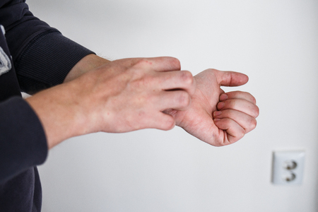 Closeup men itching and scratching by hand. Psoriasis or eczema on the hand. Atopic allergy skin with red spots Stock Photo