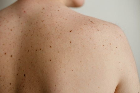 Close up detail of the bare skin on a man back with scattered moles and freckles , Disorders of body , Checking benign moles , Sun effect on skin. Birthmarks on skin
