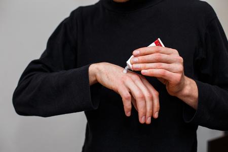 남자는 건선, 습진 및 기타 건조한 피부 상태의 치료에서와 같이 건조한 벗겨지기 쉬운 피부에 완화제를 바르고 있습니다. 크림 튜브