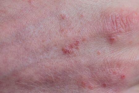Psoriasis huid. Psoriasis is een auto-immuunziekte die de huid aantast en een rode en schilferige huidontsteking veroorzaakt.