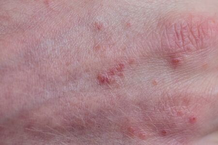 Psoriasis skin. Psoriasis is an autoimmune disease that affects the skin cause skin inflammation red and scaly.