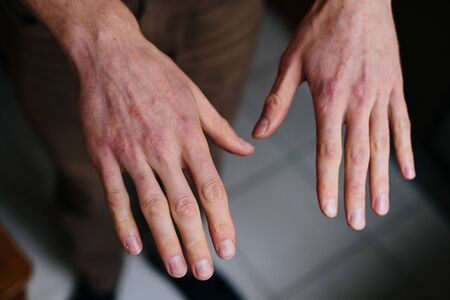 Psoriasis skin. Closeup of rash and scaling on the patients skin. The concept of chronic disease treatment. Dermatological problems. Hard, horny and cracked skin in mans hands. Stock Photo