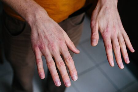 high angle view of hands suffering the dryness on the skin and deep cracks on knuckles.