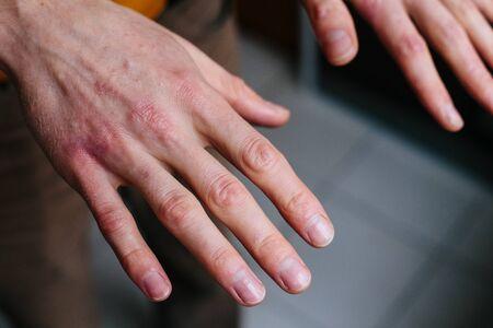 Hohe Betrachtungswinkel der Hände, die unter Trockenheit auf der Haut und tiefen Rissen an den Knöcheln leiden.