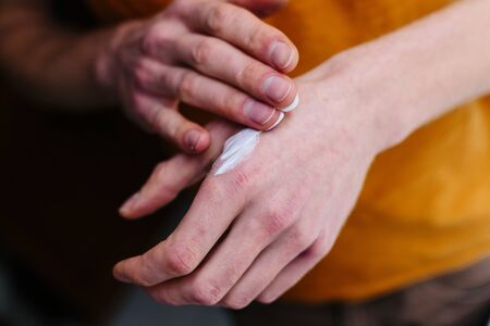 Eczema on the hands. Ointment on the hands of an elderly person. Retired applying the ointment , creams in the treatment of eczema, psoriasis and other skin diseases Stock Photo