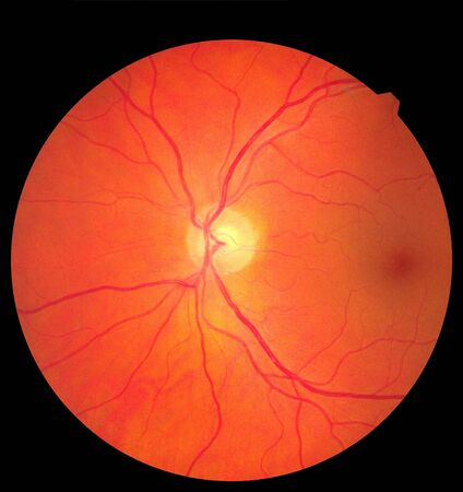 Ophthalmic image detailing the retina and optic nerve inside a healthy human eye. Medicine concept