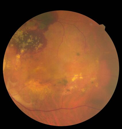 View inside human eye disorders showing retina, optic nerve and macula. Retinal picture ,Medical photo tractional eye screen retinal detachment of diabetes. Eye treatment concept. Stok Fotoğraf