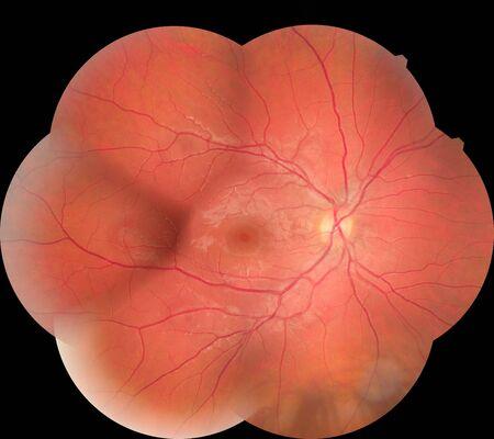 Medical photo retina diabetic retinopathy. Examination of the eye, diabetic retinopathy, ARMD