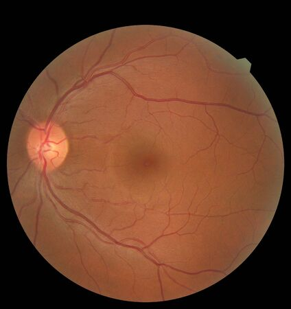 View inside human eye showing retina, optic nerve and macula. Health concept Stok Fotoğraf