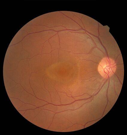 View inside human eye showing retina, optic nerve and macula
