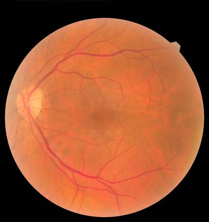 Ophthalmic image detailing the retina and optic nerve inside a healthy human eye. Health protection concept