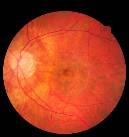 Ophthalmic image detailing the retina and optic nerve inside a healthy human eye. Zdjęcie Seryjne