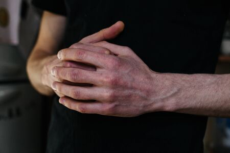 Cracked, flaky skin on the hands. Dermatological problems of psoriasis. Hard, horny and cracked skin on the finger in a woman's hands. Hand stains, dry skin. Psoriasis, allergy Stok Fotoğraf - 144596165