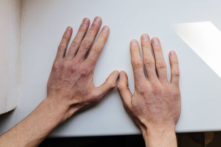 Cracked, flaky skin on the hands. Dermatological problems of psoriasis. Hard, and cracked skin on the finger in a woman's hands. Hand stains, dry skin. Psoriasis, allergy