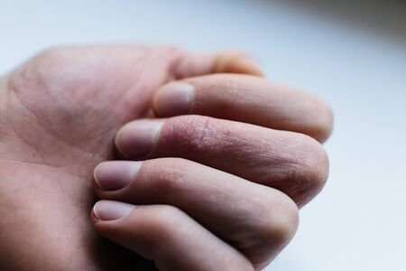 Man with sick hands, dry flaky skin on his hand with vulgar psoriasis, eczema and other skin diseases such as fungus, rash and blemishes. Autoimmune genetic disease. Stok Fotoğraf - 143732978