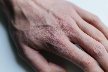 Man with sick hands, dry flaky skin on his hand with vulgar psoriasis, eczema and other skin diseases such as fungus, rash and blemishes. Autoimmune genetic disease.