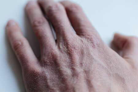 Man with sick hands, dry flaky skin on his hand with vulgar psoriasis, eczema and other skin diseases such as fungus, rash and blemishes. Autoimmune genetic disease. Stok Fotoğraf - 144586683