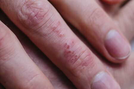close-up of a patients fingers showing plaques of dry skin typically seen with psoriasis. Skin problems
