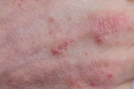 close-up of a patients fingers showing plaques of dry skin typically seen with psoriasis. Skin problems Stok Fotoğraf - 145074951