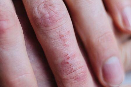 Skin diseases. Derma infection, eczema and psoriasis. Dermatology photo. Disease medical epidermis