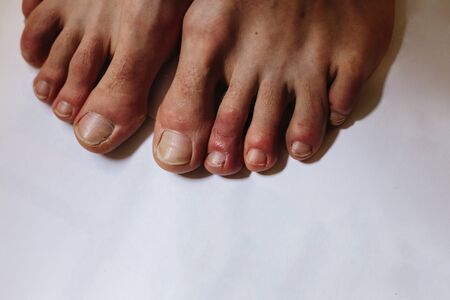 COVID toes . Another another symptom of coronavirus infection. Painful red and purple bumps that tend to occur at the tips of the toes or on the tops of the feet Stok Fotoğraf - 146695587