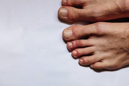 COVID toes . Another another symptom of coronavirus infection. Painful red and purple bumps that tend to occur at the tips of the toes or on the tops of the feet Banque d'images