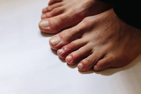 COVID toes . Another another symptom of coronavirus infection. Copy space
