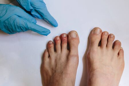 Mysterious skin condition that causes purple, blue or red discoloration in toes and occasionally fingers. New symptom of coronavirus infection. Covid 19 Stok Fotoğraf - 146695595