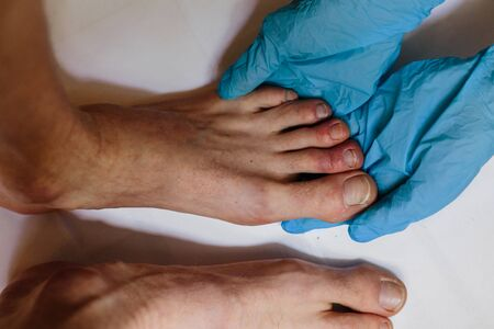 Mysterious skin condition that causes purple, blue or red discoloration in toes and occasionally fingers. New symptom of coronavirus infection. Covid 19 Stok Fotoğraf - 146695596