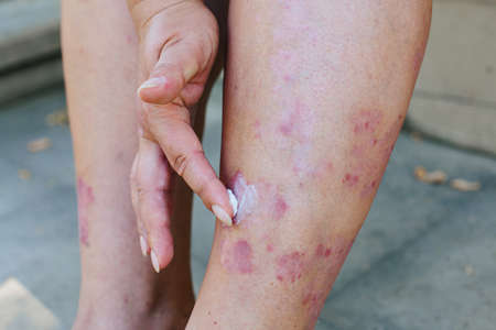 Application of therapeutic ointment for allergic rashes on the leg. Treatment of psoriasis, cosmetic and dermatological problems with ointment. Stok Fotoğraf - 153764029