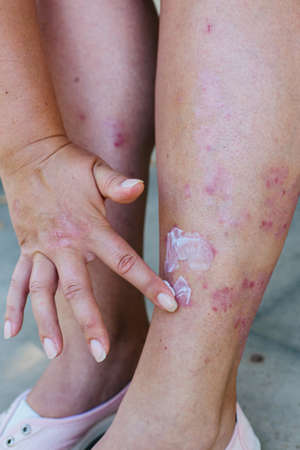 Application of therapeutic ointment for allergic rashes on the leg. Treatment of psoriasis, cosmetic and dermatological problems with ointment.