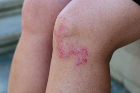 Closeup of the legs of a woman suffering from chronic psoriasis. Closeup of rash and scaling on the patients skin. Dermatological problems. Dry skin. Stok Fotoğraf - 154095785