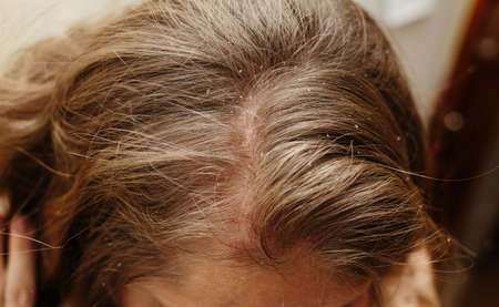 Psoriasis Vulgaris, psoriatic skin disease in hair, skin patches are typicaly red, itchy, and scaly, macro with narrow focus
