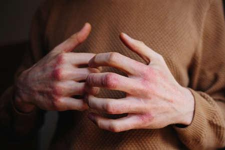 Allergic rash dermatitis eczema skin of patient. Man itchind skin with psoriasis Stok Fotoğraf