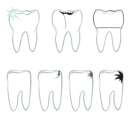 Tooth  set  Dental symbols set  Stock Vector - 18320726