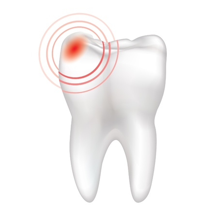 pulsation: Sick tooth isolated on a white background