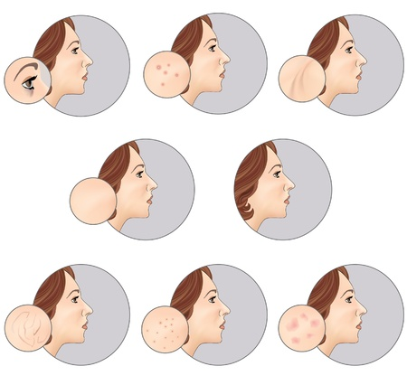 Skincare label vector set  Woman s skin before and after the procedure on a gray background  Human Skin Problem Illustration  Vector