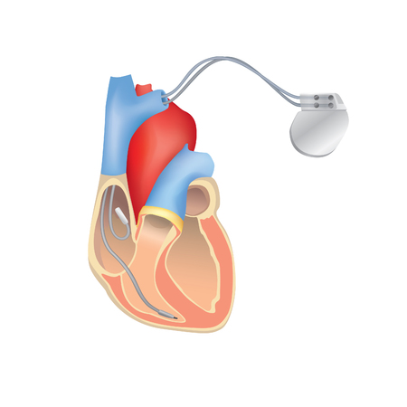 Heart pacemaker in work. Human heart anatomy cross section with working implantable cardioverter defibrillator. Illustration